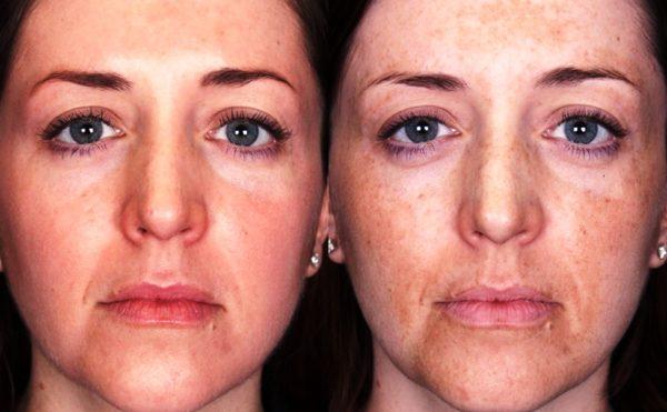 Кожа лица после процедуры химического пилинга