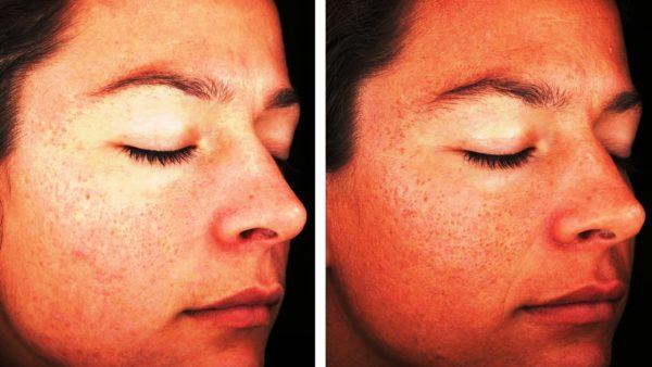 Кожа лица до и после проведения процедуры гликоевого пилинга