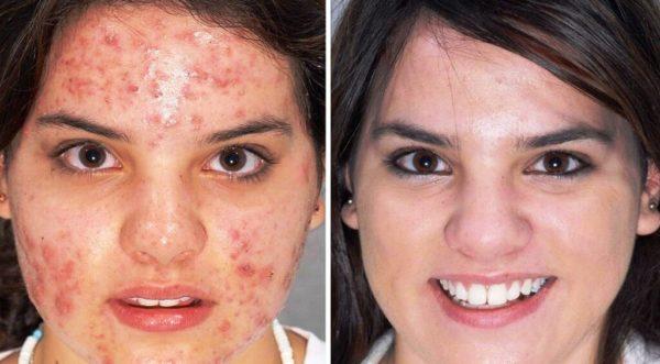 Пировиноградный пилинг помогает при проблемной, себорейной,склонной к угревой сыпи коже