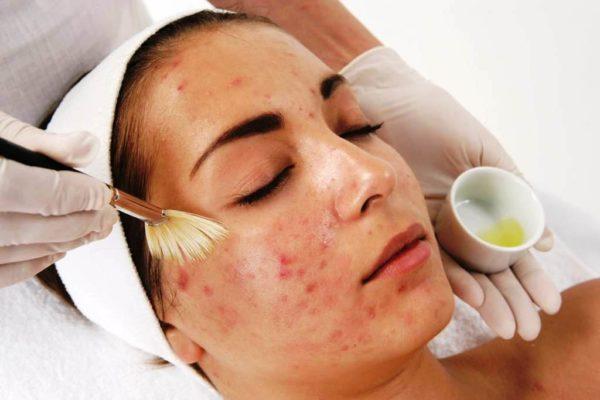Салициловый пилинг подходит для кожи склонной к воспалениям и высыпаниям