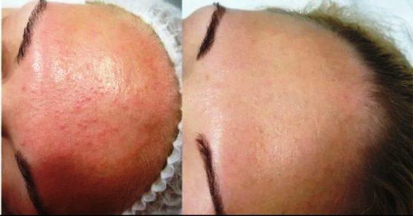 Кожа лица до и после проведения процедуры салицилового пилинга