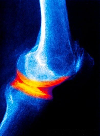 joint-disease-x-ray