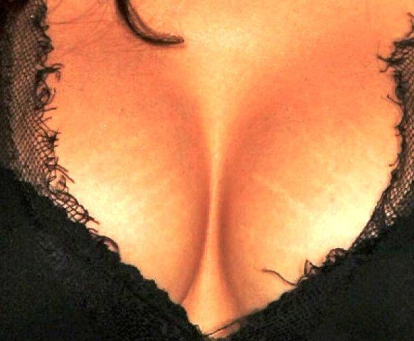 Растяжки на груди чаще возникают после родов