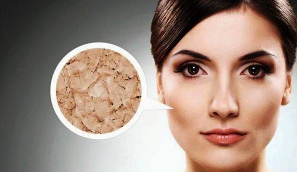 Как ухаживать за сухой кожей