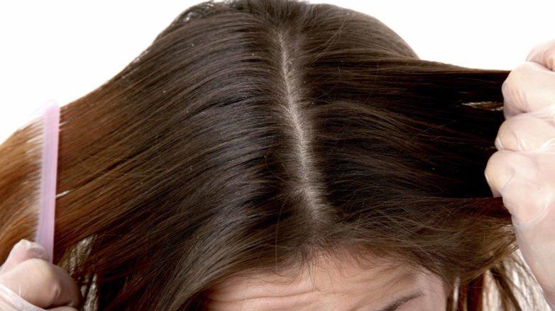 dandruff-scalp-782x439