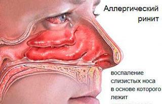 allergicheskij-rinit-2
