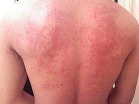 allergija-2