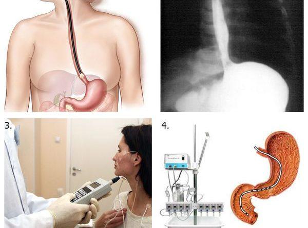 jezofagit-prichiny-simptomy-i-lechenie-v-state-jendoskopista-averin-a-2