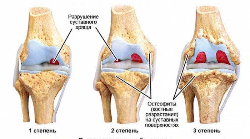 osteoartroz-3