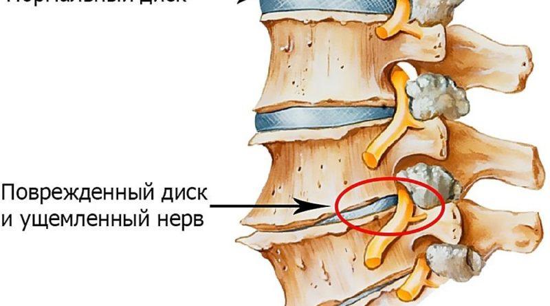 osteohondroz-pozvonochnika-2