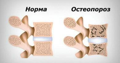 osteoporoz-2