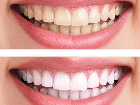otbelivanie-zubov-3
