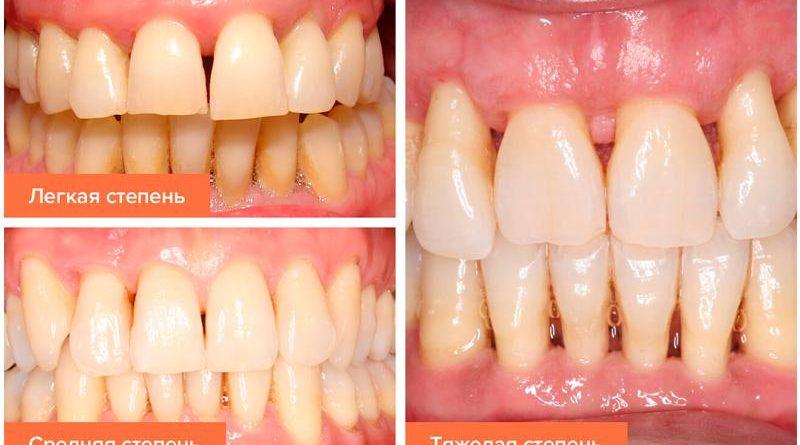 parodontit-i-parodontoz-est-li-razlichie-medicinskij-spravochnik-2
