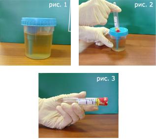 podgotovka-k-sdache-analizov-krovi-mochi-kala-spermogramma-gastropanel-uzi-2