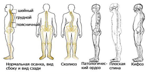 pravilnaja-osanka-znak-zdorovja-2