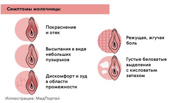 profilaktika-molochnicy-pochemu-jeto-tak-vazhno-2