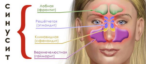 sinusit-i-gajmorit-sposoby-lechenija-2